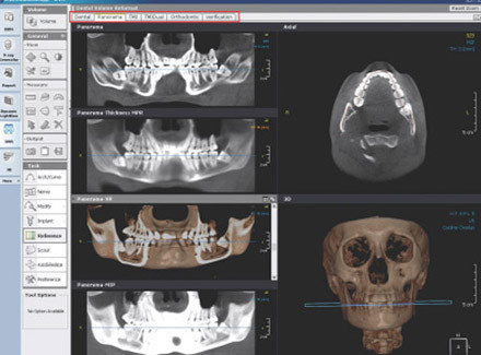OnDemand3D X-ray Software